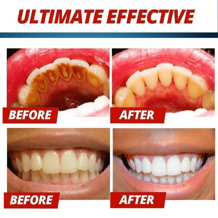 Push On Baking Soda Whitening Toothpaste